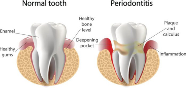 periodontal disease and tooth loss