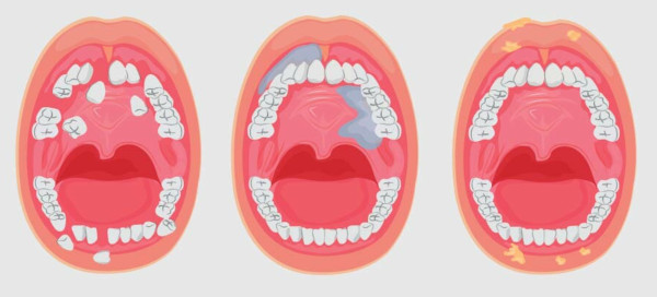 Oral cancer signs