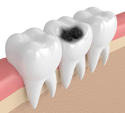 Tooth Decay Causes, Stages and Prevention | My Dentist Burbank