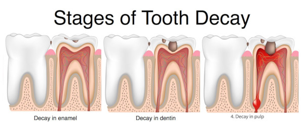 5 Stages of Tooth Decay Burbank