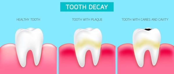Dentin Decay