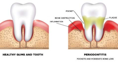 tooth loss