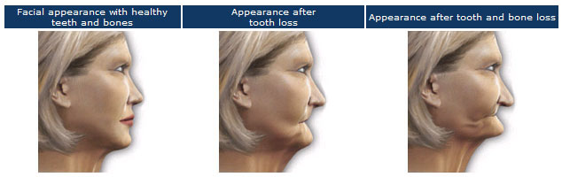 Facial atrophy after tooth loss 1