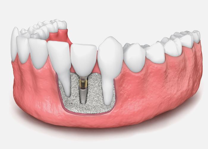 bone grafting for dental implant