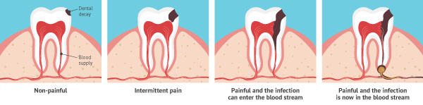 the stages of cavity development