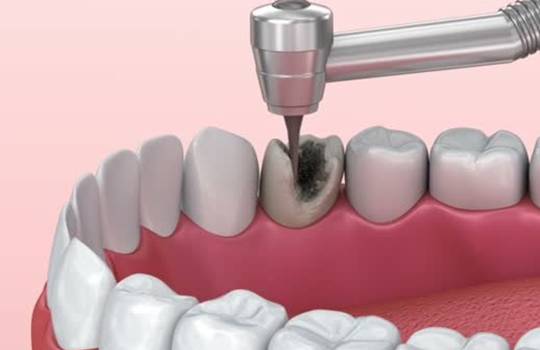 treatment of the cavity