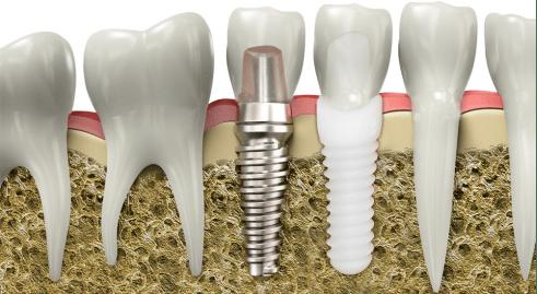 Traditional Titanium Implants