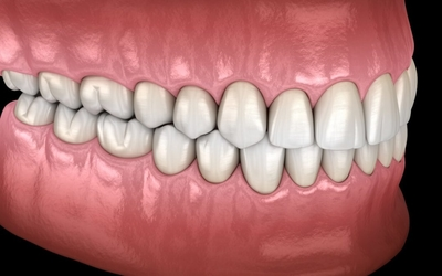 dental bite