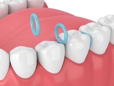 orthodontic teeth