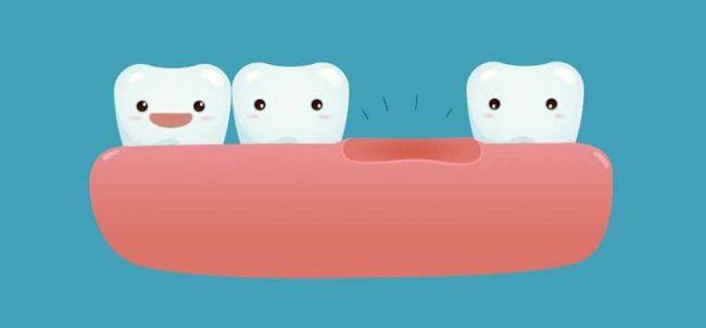 replace teeth