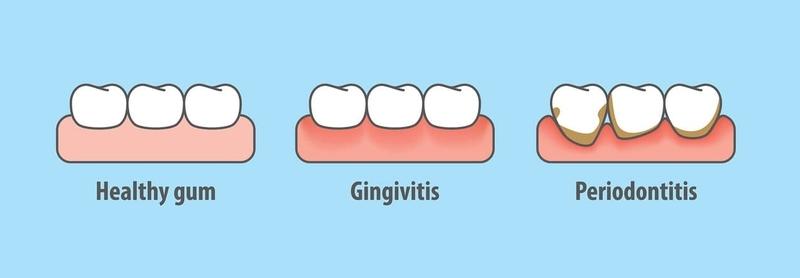 gum pain