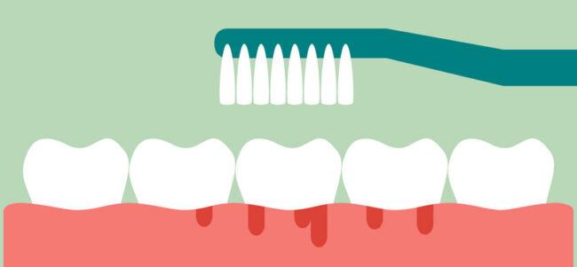 brushing teeth with bleeding_01